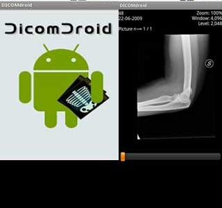 Dicomdroid – medical application for Android mobile and tablet